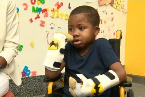 Unui băiat de opt ani i s-au grefat ambele mâini